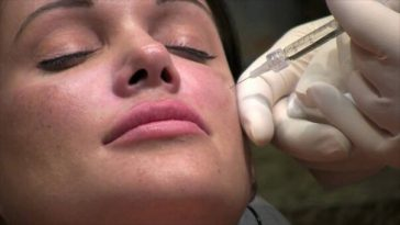 Risks and Dangers of Plastic Surgery